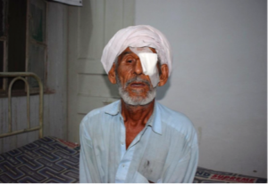 Cataract Operations, Pakistan 2017